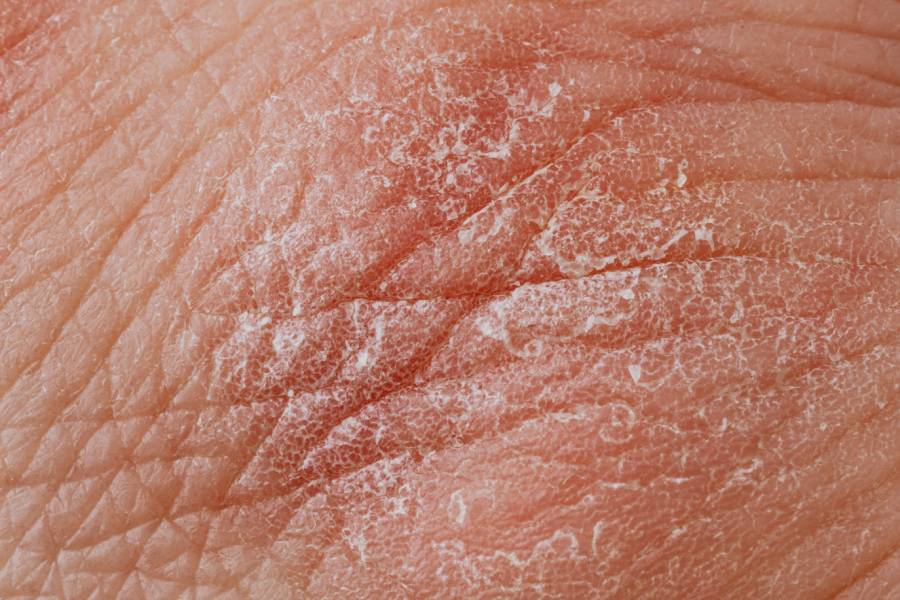 skin with dermatitis blisters